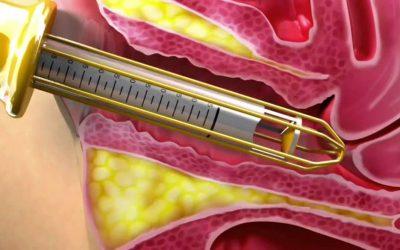 Non-Surgical Vaginal Rejuvenation – Laser Vaginal Tightening