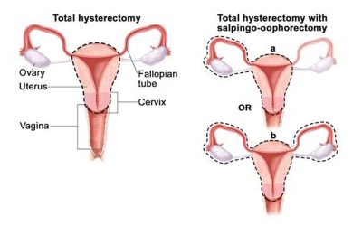 Total Laparoscopic Hysterectomy