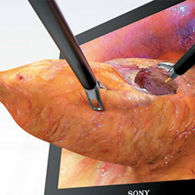 3D Laparoscopic Robot Surgery Specialist in Chennai Dr Deepa Ganesh