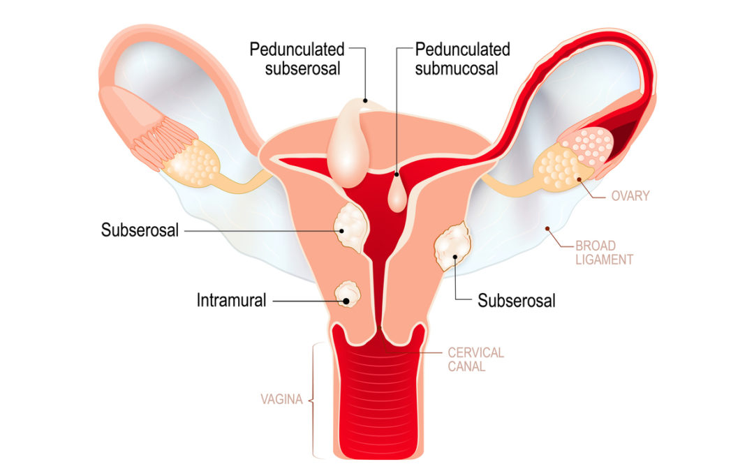 How fibroids affect menstrual cycle?