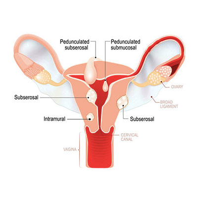 Laparoscopic Myomectomy Fibroids Removal Doctor in Chennai Dr. Deepa Ganesh