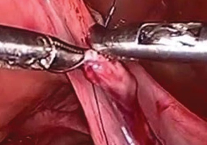 Laparoscopic Tubal Recanalisation - Dr Deepa Ganesh
