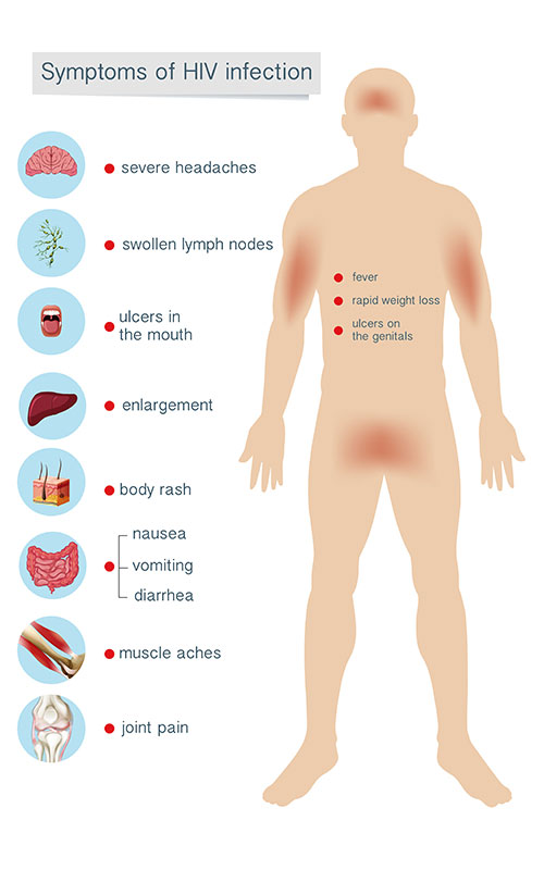 symptoms-of-hiv-infection-treatment-dr-deepa-ganesh