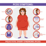 polycystic-ovary-syndrome-pcos-treatment-doctor-chennai