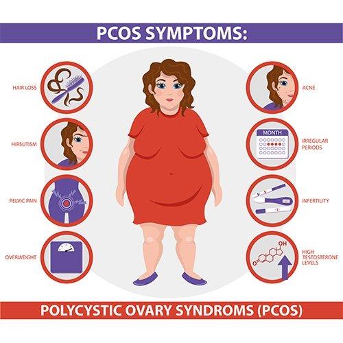 polycystic-ovary-syndrome-pcos-treatment-doctor-chennai