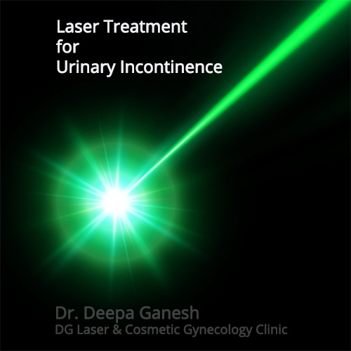 laser-treatment-for-urinary-incontinence