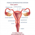 tubal-ligation-procedure-dr-deepa-ganesh-chennai