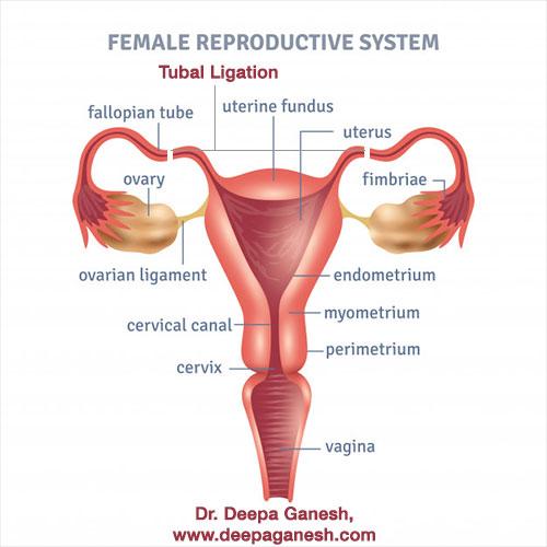 tubal-ligation-procedure-dr-deepa-ganesh-chennai
