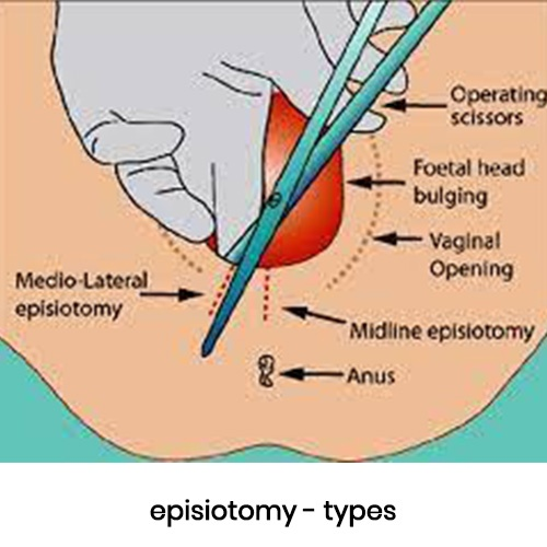 Episiotomy – Definition, Recovery and Complications